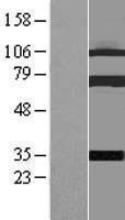 NBL1-09347 - Coilin Lysate