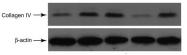 NB120-6586 - Collagen type IV