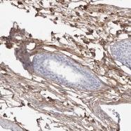 NBP1-91193 - Collagen type VI