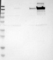 NBP1-90951 - Collagen type VI alpha 2 chain