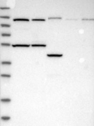 NBP1-87437 - Collagen type XXI alpha 1 chain