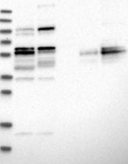 NBP1-90355 - Collagen type XXI alpha 1 chain