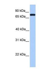 NBP1-58984 - Complement C2