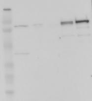 NBP1-89985 - Complement factor B