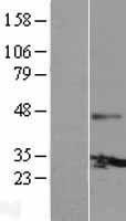 NBL1-11097 - Connexin 30.3 / GJB4 Lysate