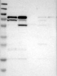 NBP1-85567 - Coronin-2B