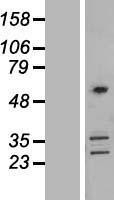 NBL1-09401 - Coronin-2B Lysate