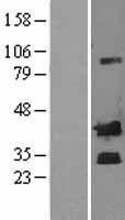 NBL1-09475 - Corticotropin Releasing Factor Lysate