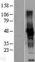 NBL1-09218 - Creatine Kinase BB Lysate