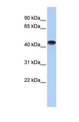 NBP1-52864 - CKMM