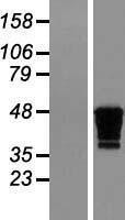 NBL1-09222 - Creatine kinase MT 1B Lysate