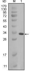 NBP1-47519 - Alpha-crystallin B chain