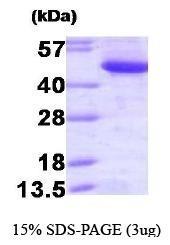 NBP1-41161 - CTBP1