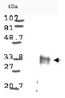 NB100-2034 - Cyclin D1