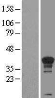 NBL1-08883 - Cyclin H Lysate