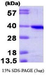 NBP1-44483 - Cyclin H