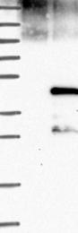 NBP1-90019 - Cyclin J