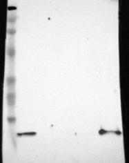 NBP1-86989 - Cystatin-A