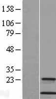 NBL1-09553 - Cystatin A Lysate