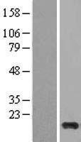 NBL1-09547 - Cystatin S Lysate