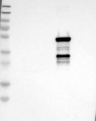 NBP1-85488 - CYP2C19