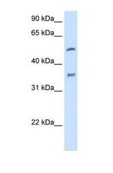 NBP1-62389 - CYP2D6