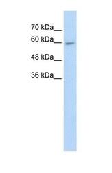 NBP1-69423 - CYP4F11