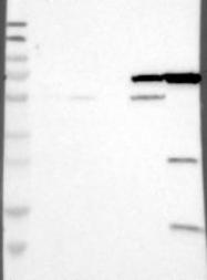 NBP1-87461 - CYP4F11