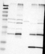 NBP1-84291 - CYBRD1