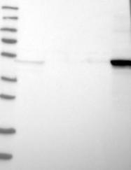 NBP1-84917 - Cytokeratin 14