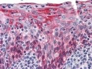 NBP1-51587 - Cytokeratin 15