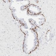NBP1-85602 - Cytokeratin 15