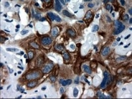 NBP1-47817 - Cytokeratin 18