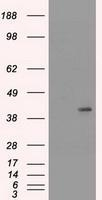 NBP1-48277 - Cytokeratin 19