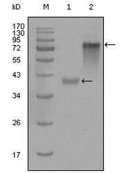 NBP1-47429 - Cytokeratin 19