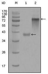 NBP1-47426 - Cytokeratin 19