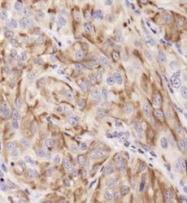 NB100-687 - Cytokeratin 19