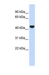 NBP1-53204 - Cytokeratin 19