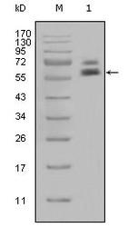 NBP1-47432 - Cytokeratin 5