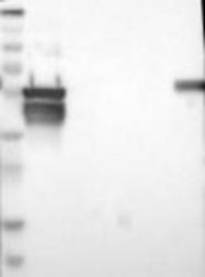 NBP1-88080 - Cytokeratin 7