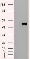 NBP1-48281 - Cytokeratin 8