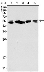 NBP1-47533 - Cytokeratin 8