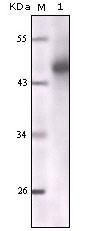 NBP1-51537 - Cytokeratin 7
