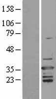 NBL1-07674 - D4 GDI Lysate