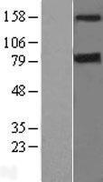 NBL1-09716 - DAPK1 Lysate