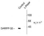 NB300-234 - DARPP32