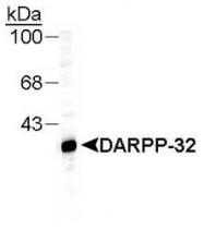 NB300-304 - DARPP32