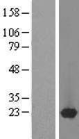 NBL1-14680 - DARPP32 Lysate