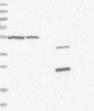 NBP1-85938 - DARS1