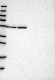 NBP1-86027 - DARS1